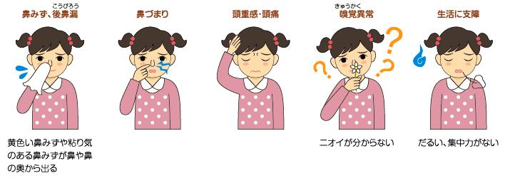 ちくのう(副鼻腔)の症状